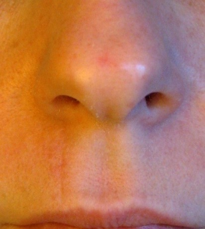 Nose basal cell
