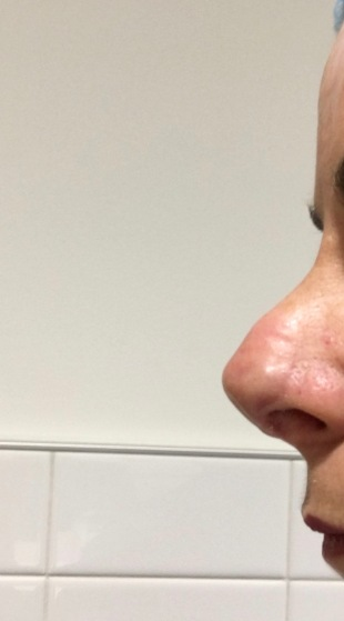 nose left