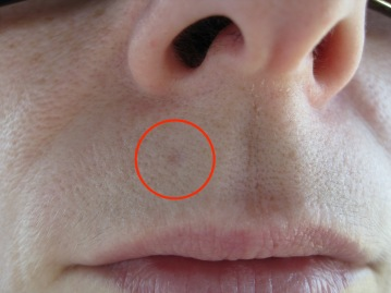 Basal cell upper lip