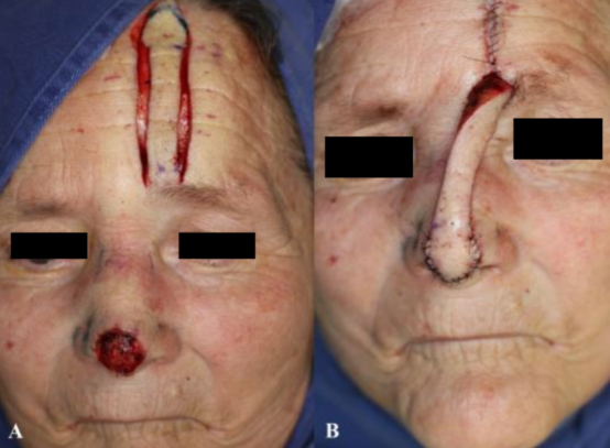 Forehead flap surgery 3