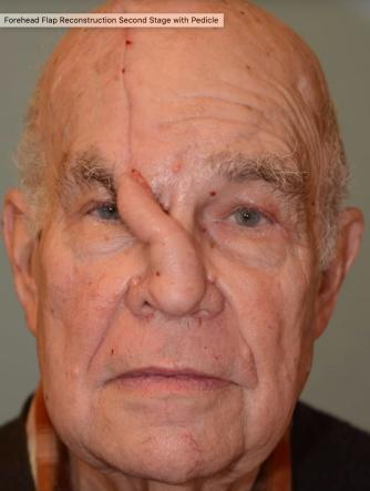 Forehead flap surgery