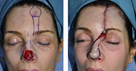 Forehead flap surgery 2
