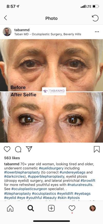 Mom's eyes